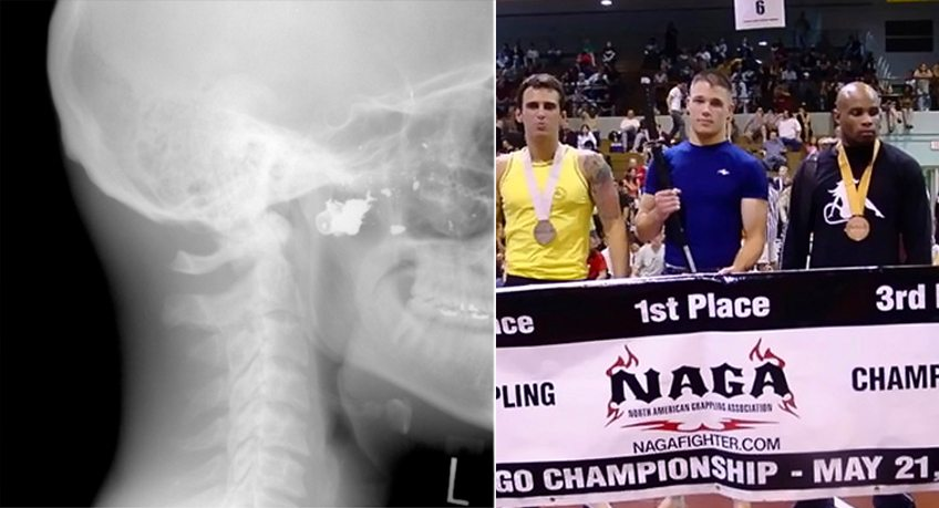 From Shooting Victim to World-Class Competitor: An Interview with