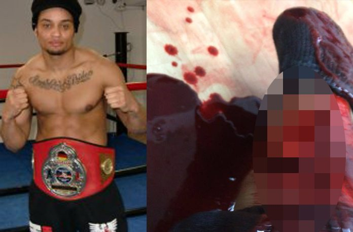 Warning Graphic: A Man Dojo Stormed A Gym With Machete